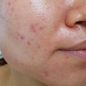 Skincare cho da dầu 3