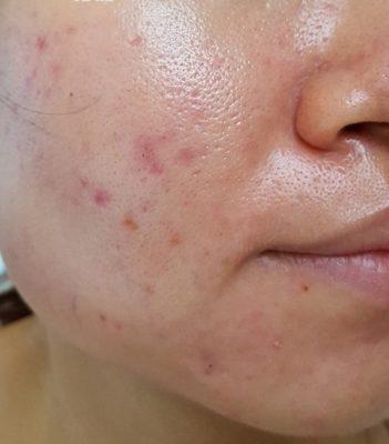 Skincare cho da dầu 1