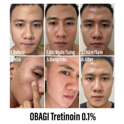 Dùng Tretinoin bị bong da