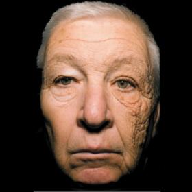 Tác hại của ánh nắng đối với làn da